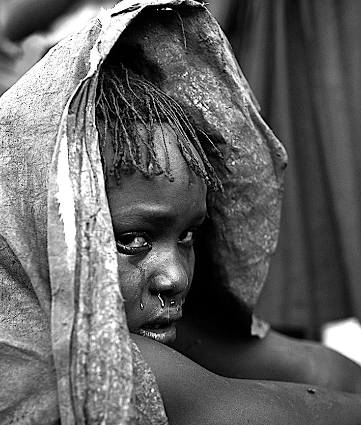 female genital mutilation reflection Female genital mutilation (fgm) is a traditional practice which is harmful to health and is profoundly rooted in many sub-saharan african countries it is estimated that between 100 and 140 million women around the world have been victims of some form of fgm and that each year 3 million girls are at risk of being submitted to these practices.